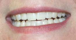 2single veneers after1