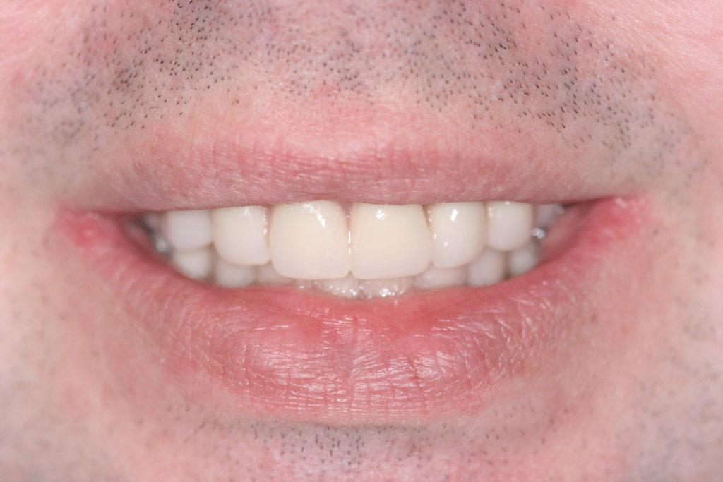 complete-dentures-after1