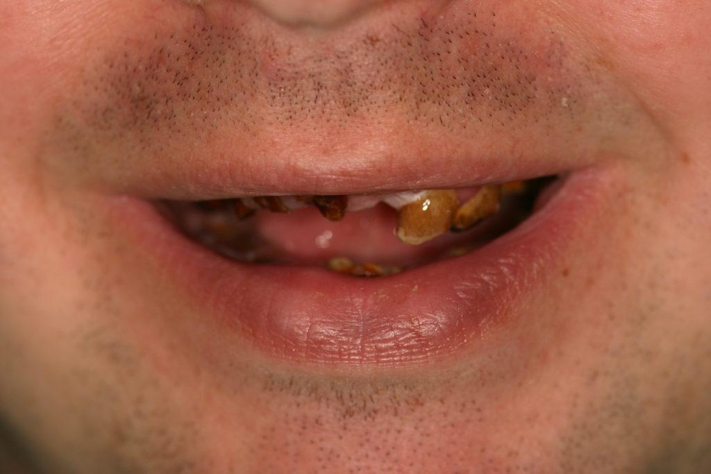 complete-dentures-before1.2