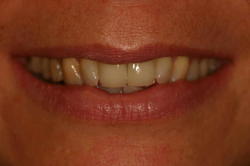 implant-crown-after