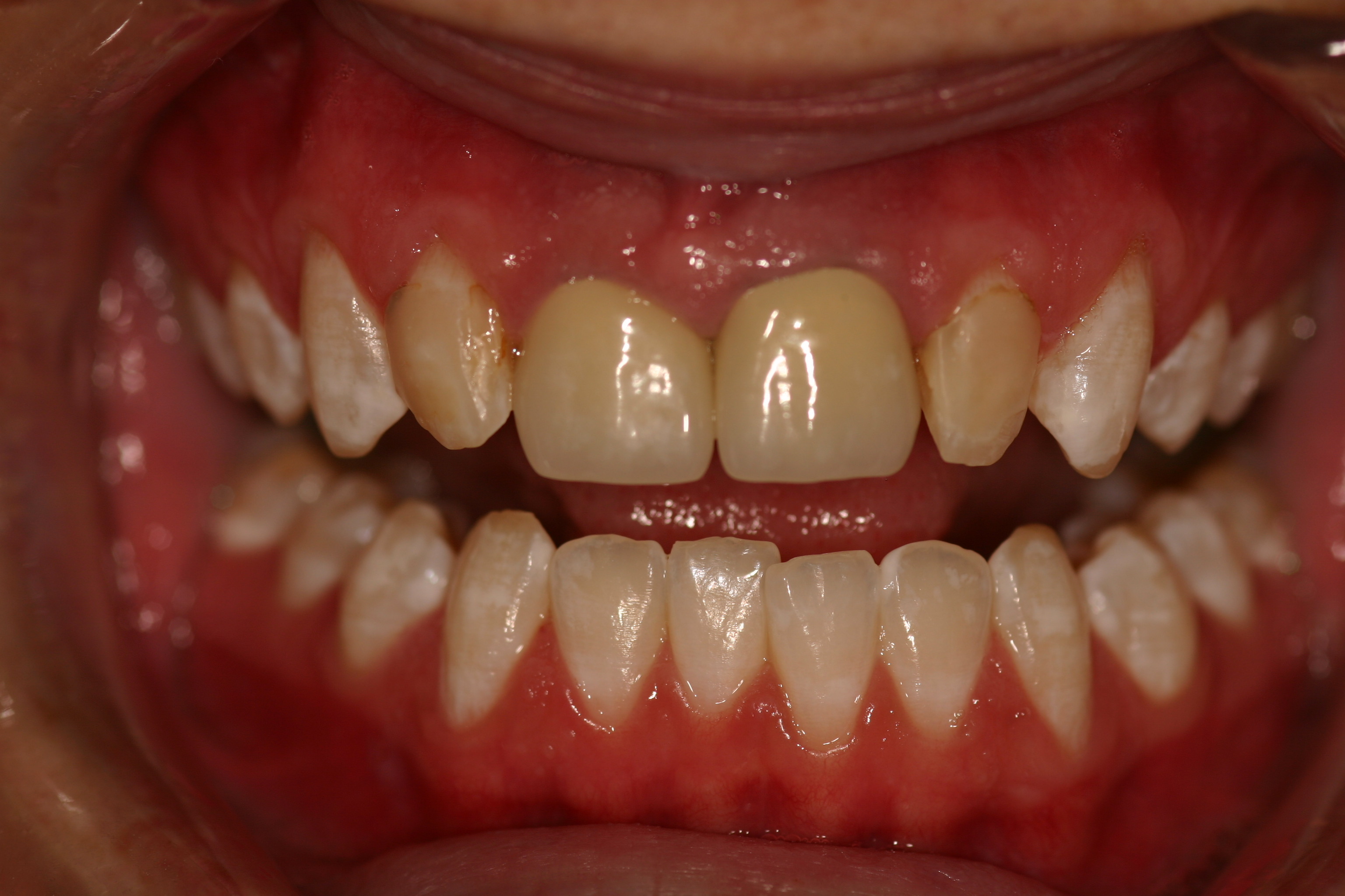 veneers-before1.2